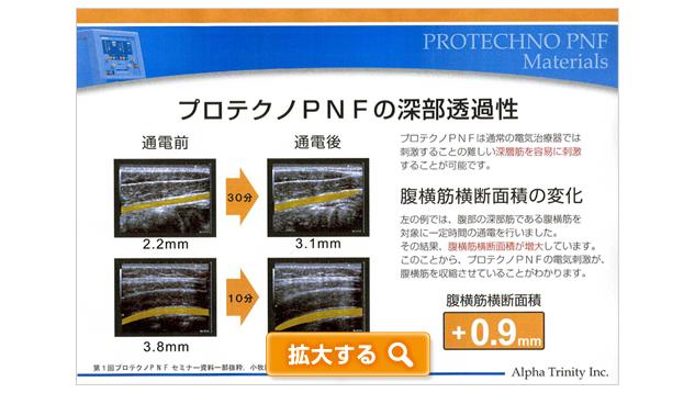プロテクノPNFの深部透過性